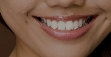 happy-smile-1 Dental Services | One Smile Dental